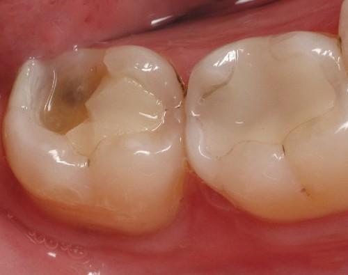 Kết quả hình ảnh cho Danh sách những vật liệu trám răng truyền thống