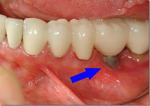 Nhổ Răng Hư Có Trồng Răng Implant Được Không -2