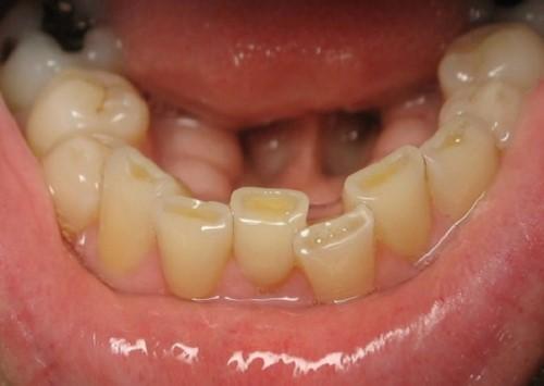 máng chống nghiến giải pháp điều trị nghiến răng 2