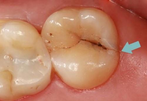máng chống nghiến giải pháp điều trị nghiến răng 3