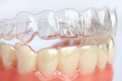 máng chống nghiến giải pháp điều trị nghiến răng 6