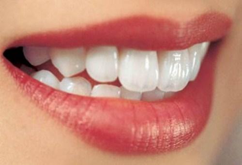 phụ nữ mang bầu có nên nhổ răng không 1