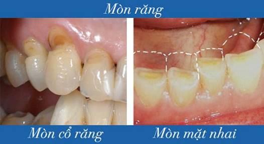 bệnh nghiến răng là bệnh gì? và những biểu hiện của bệnh 2