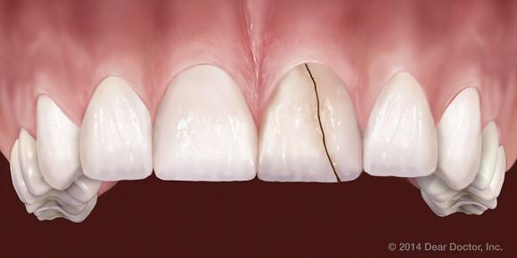 bệnh nghiến răng là bệnh gì? và những biểu hiện của bệnh 3