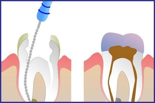 biểu hiện và triệu chứng của bệnh sâu răng ở trẻ em 4