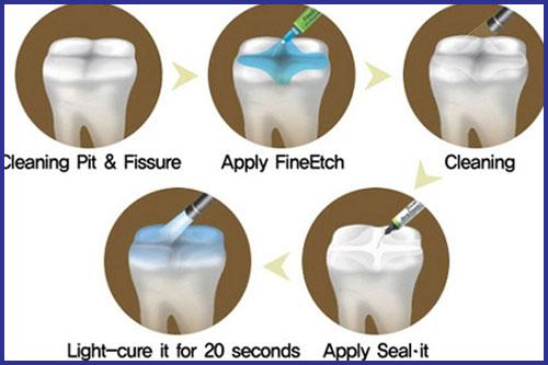 biểu hiện và triệu chứng của bệnh sâu răng ở trẻ em 5