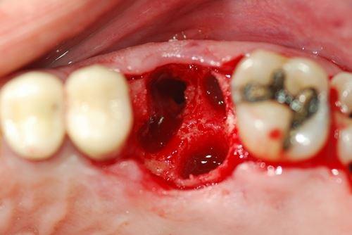 các biến chứng khi nhổ răng số 8 là gì 2