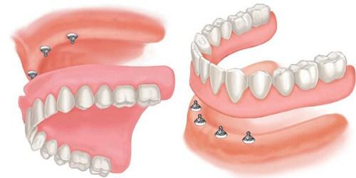 các loại răng tháo lắp hiện nay 3