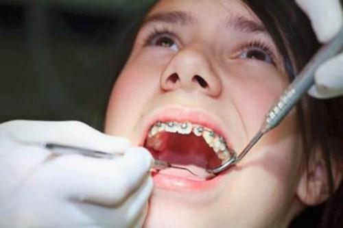 các phương pháp chỉnh hình răng cho trẻ em 11