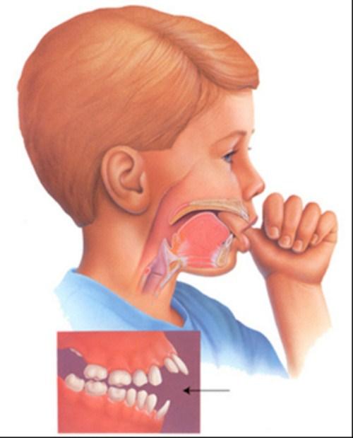 các phương pháp chỉnh hình răng cho trẻ em 2