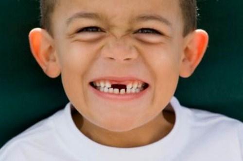 các phương pháp chỉnh hình răng cho trẻ em 3