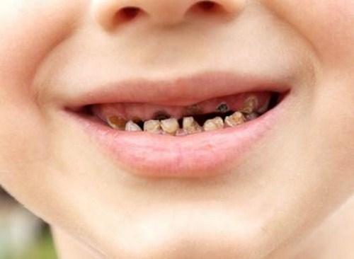 các phương pháp chỉnh hình răng cho trẻ em 5