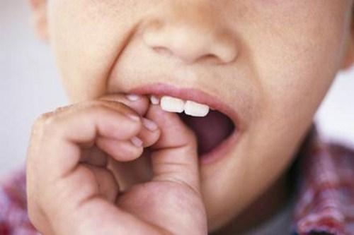 các phương pháp chỉnh hình răng cho trẻ em 6