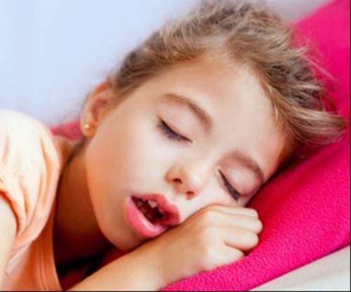 các phương pháp chỉnh hình răng cho trẻ em 7