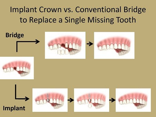 các trường hợp nào nên làm cầu răng sứ 4