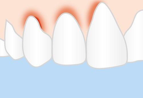 các vấn đề thường gặp sau khi trồng răng sứ1