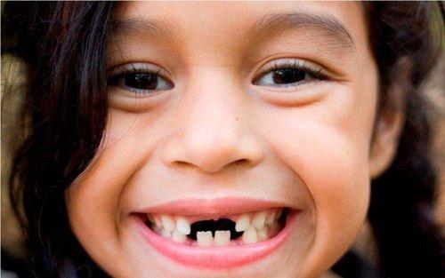 cách chữa sâu răng trẻ em như thế nào 2