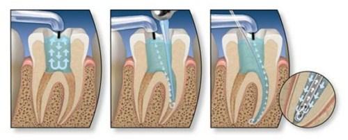 cách chữa sâu răng trẻ em như thế nào 4