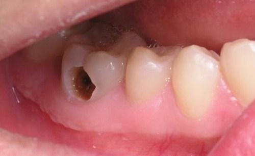 cách điều trị áp xe chân răng tốt nhất hiện nay 2
