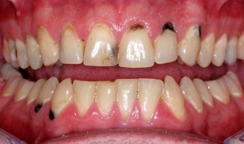 Cạo côi răng thường xuyên có nên hay không 1