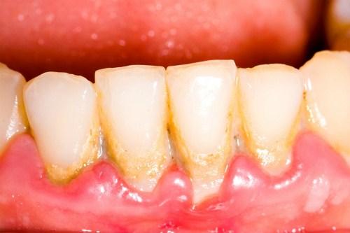 Cạo côi răng thường xuyên có nên hay không 2