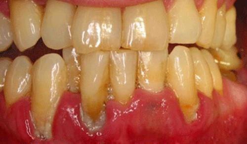 Cạo côi răng thường xuyên có nên hay không 3