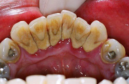 Cạo vôi răng và đánh bóng răng có làm trắng răng được không