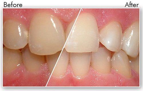 Cạo vôi răng và đánh bóng răng có làm trắng răng không