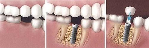 Cấy Ghép Implant Phương Pháp Nha Khoa -2