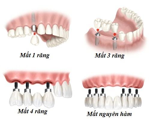Cấy Ghép Implant Phương Pháp Nha Khoa -3