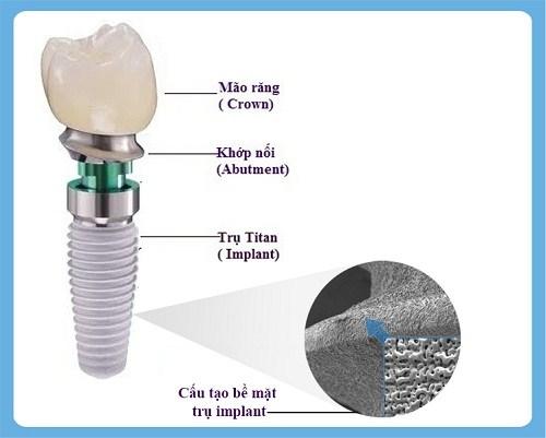Cấy Ghép Implant Phương Pháp Nha Khoa -4