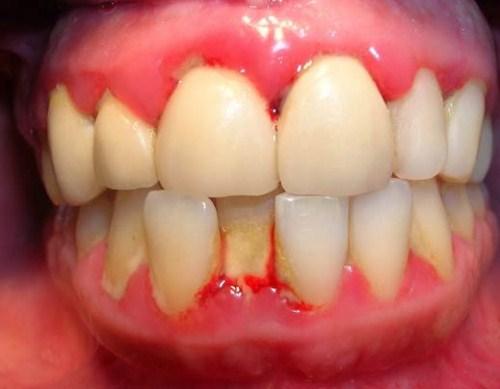 chảy máu chân răng – dấu hiệu cảnh báo nhiều bệnh nguy hiểm 3