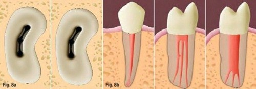 chữa tủy răng bao lâu hoàn thành 2