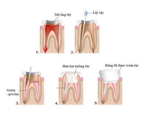 chữa tủy răng bao lâu hoàn thành 4