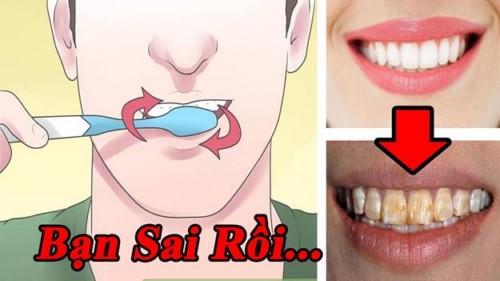 Vì sao đánh răng thường xuyên vẫn bị sâu răng 2