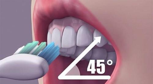 Vì sao đánh răng thường xuyên vẫn bị sâu răng 4