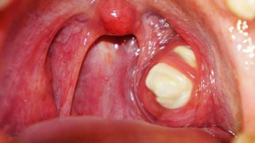 những dấu hiệu nhận biết bệnh hôi miệng 4