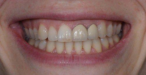 Kết quả hình ảnh cho Vì sao răng sứ bị đen ở viền chân răng?
