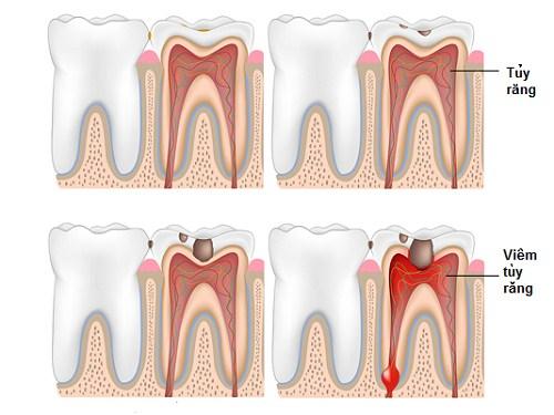 điều trị viêm tủy răng ở trẻ em 1