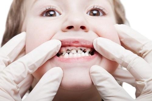 điều trị viêm tủy răng ở trẻ em 2
