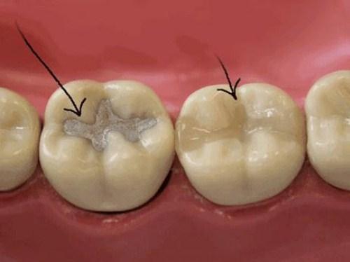 điều trị viêm tủy răng ở trẻ em 6
