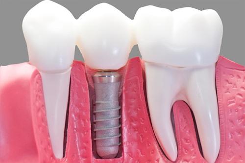 Image result for răng sứ tren implant