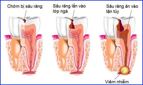 hậu quả của bệnh sâu răng gây hại gì đến tủy răng 1
