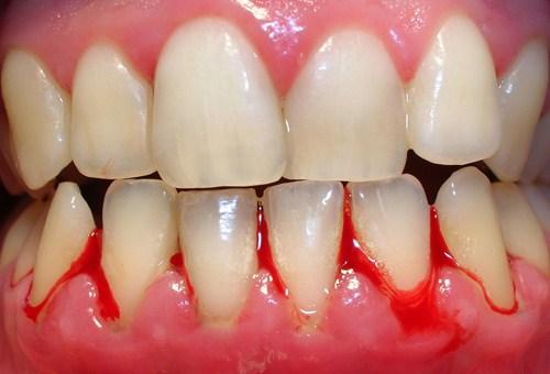 hiện tượng chảy máu chân răng ở bà bầu 1