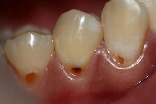 khuyết cổ răng là gì? biểu hiện của bệnh như thế nào 1