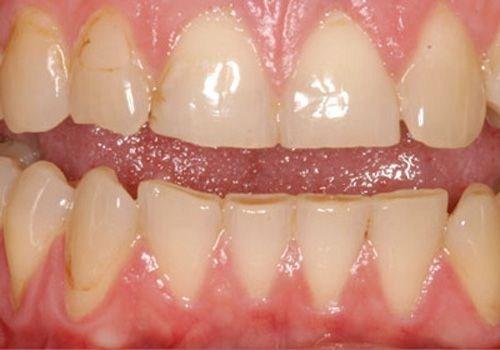 khuyết cổ răng là gì? biểu hiện của bệnh như thế nào 3