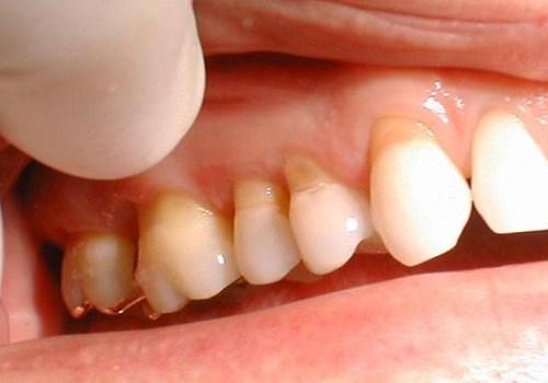 khuyết cổ răng là gì? biểu hiện của bệnh như thế nào 4