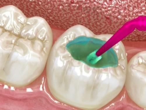 khuyết cổ răng là gì? biểu hiện của bệnh như thế nào 5