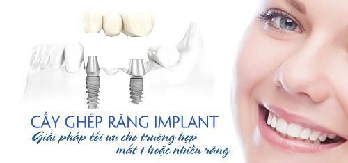 lợi ích của cấy ghép implant