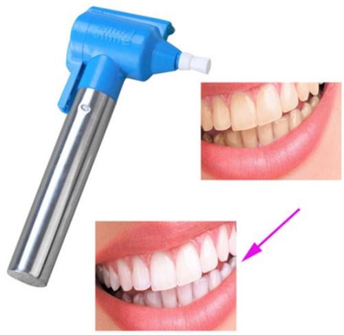 nguyên nhân gây ê buốt răng là do đâu 3